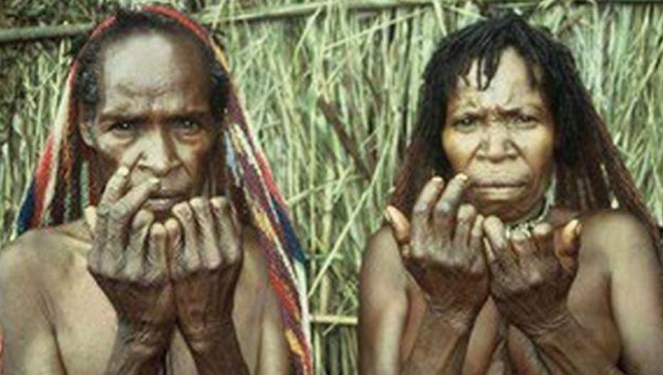 Hukum Adat Potong Jari di Papua